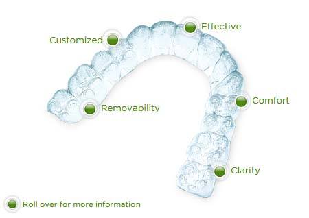 shows features of invisalign.